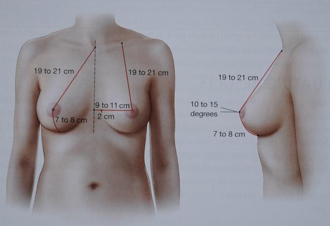 Реально увеличить грудь на 1 размер
